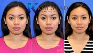 san diego asian rhinoplasty 209 copy