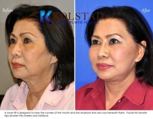 Asian Face lift San Diego 1