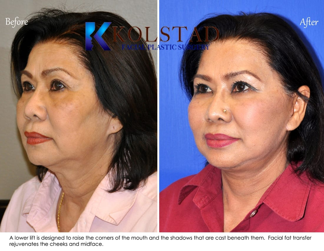 Asian Plastic Surgery Youtube | Search Results | Plastic ...