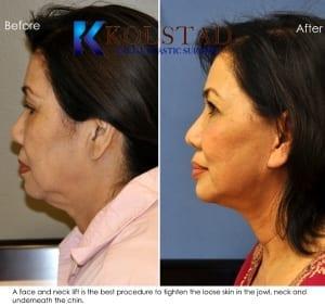 Asian Face lift San Diego