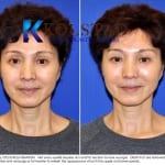 Asian eyelid surgery  0