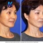 Asian eyelid surgery 1