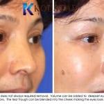 Asian eyelid surgery 2