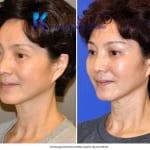 Asian eyelid surgery 3