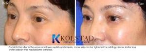 Asian eyelid surgery 4