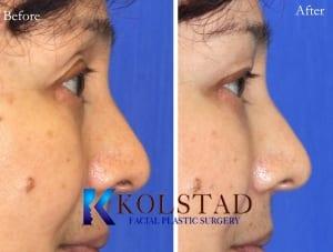 Asian eyelid surgery 5