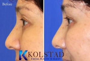 Asian eyelid surgery 6