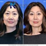asian eyelid surgery san diego 500 copy