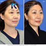 asian eyelid surgery san diego 501 copy