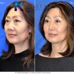 asian eyelid surgery san diego 502 copy
