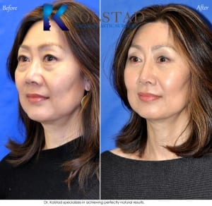 asian eyelid surgery san diego 502 copy
