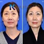 asian eyelid surgery san diego 503 copy