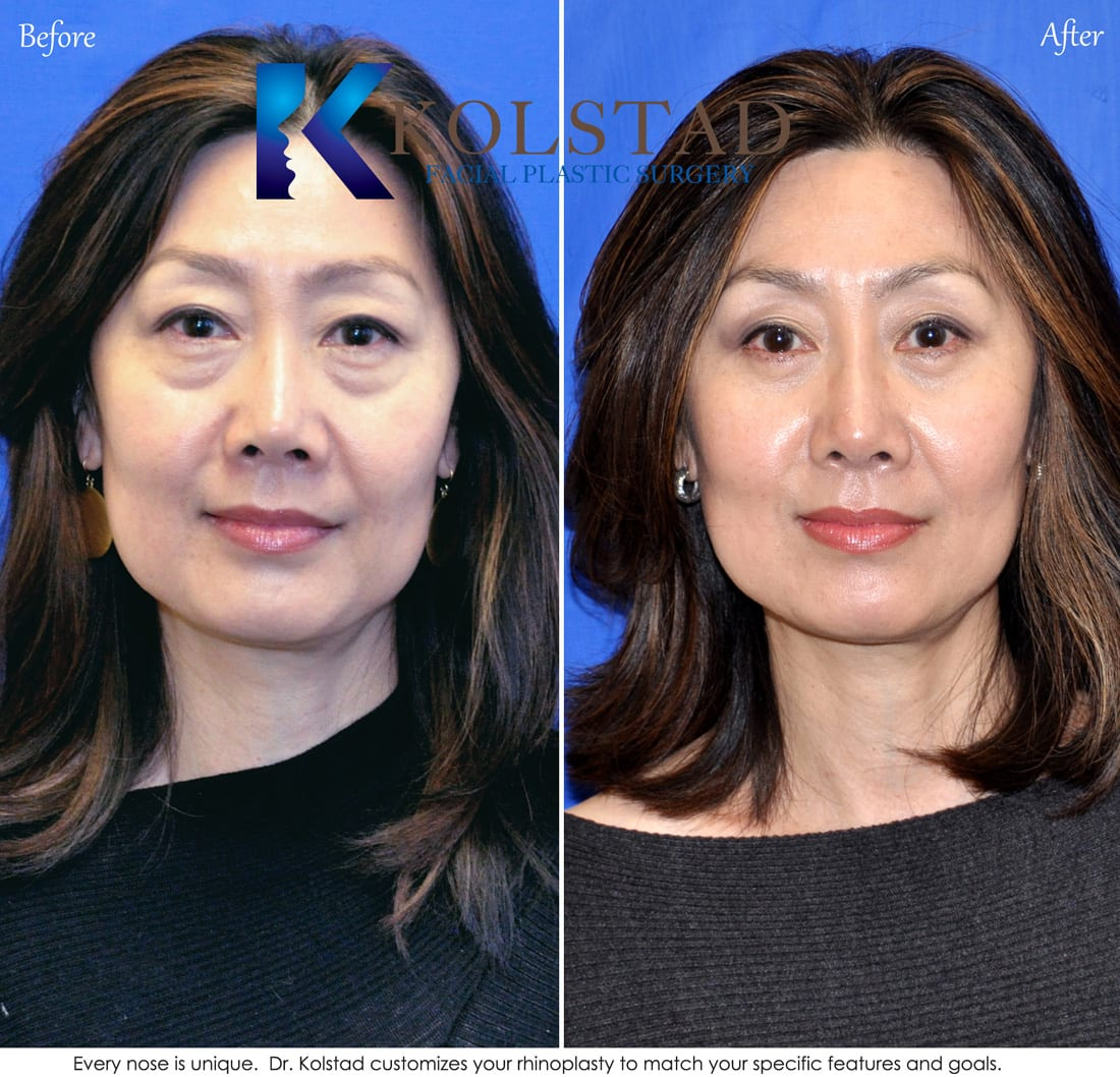Rhinoplasty before and after pictures asian dresses