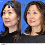 Asian Rhinoplasty San Diego