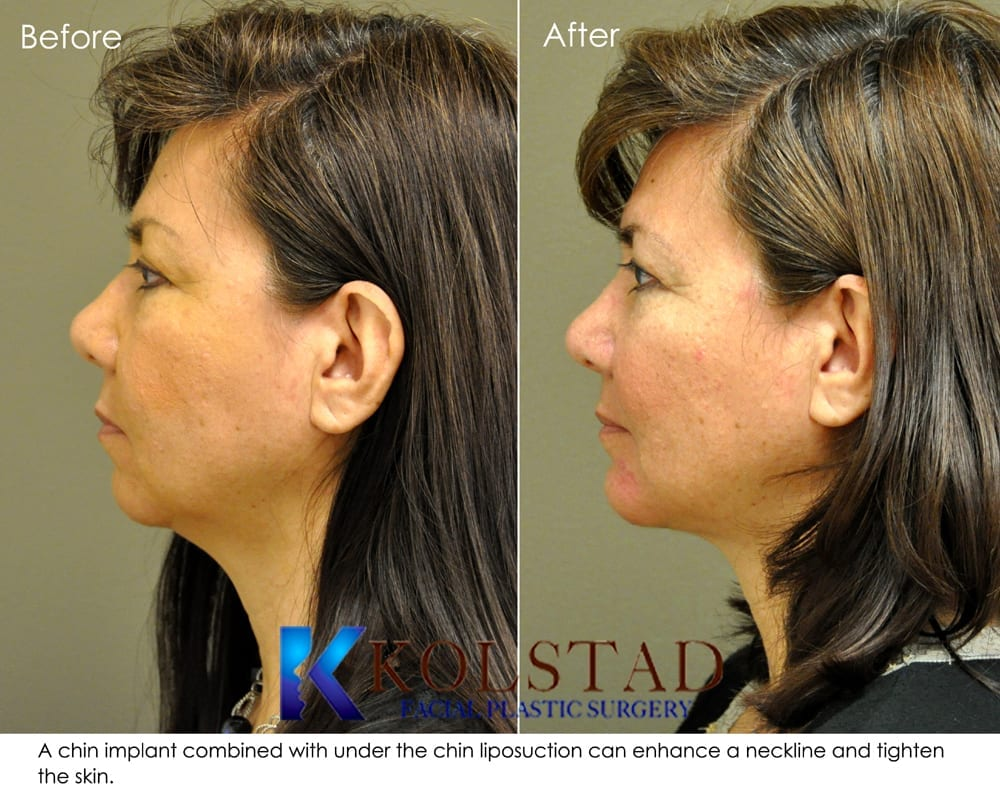 chin implant san diego 10