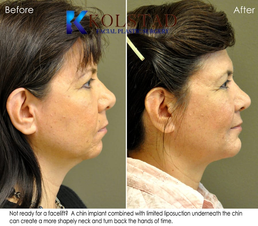 chin implant san diego 11