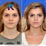 san diego teen rhinoplasty 200 copy