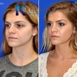 san diego teen rhinoplasty 202 copy