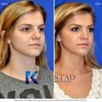 san diego teen rhinoplasty 204 copy