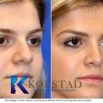 san diego teen rhinoplasty 205 copy