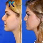 san diego teen rhinoplasty 206 copy