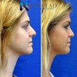 san diego teen rhinoplasty 207 copy