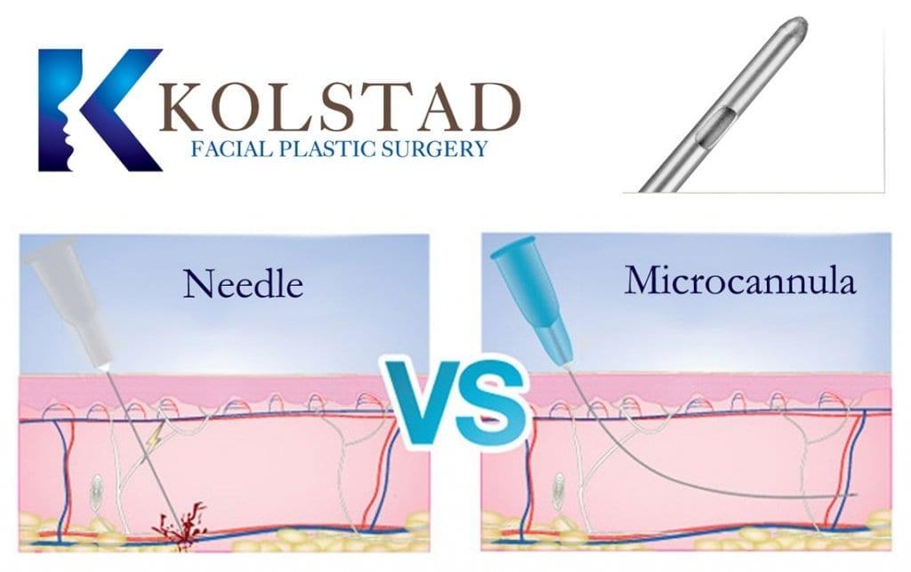 Dr. Kolstad's Microcanula Technique