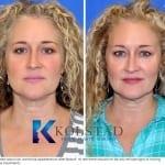 microdroplet botox pictures