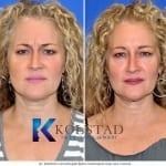 microdroplet botox results