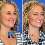 natural botox results