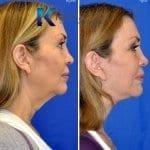 best facelift surgeon san diego