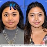 asian nasal tip surgery san diego