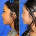 asian nose job surgery