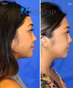 asian rhinoplasty implants