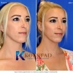 best cheek augmentation