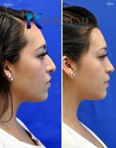 mexican nose job surgery