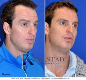 mens hair transplant results
