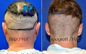 FUT vs FUE scar