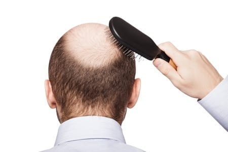 16764238 - human alopecia or hair loss - adult man hand holding comb on bald head
