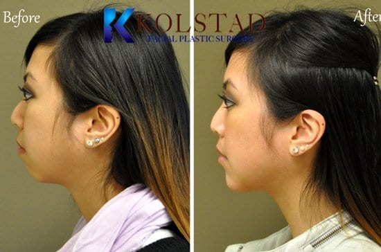 asian chin augmentation san diego
