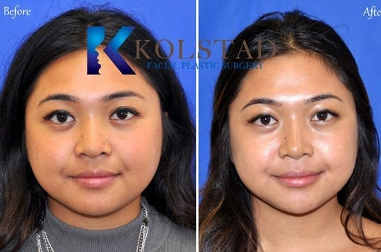 asian nose job san diego
