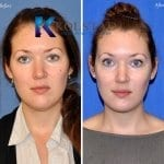 chin-liposuction-san-diego-56-copy