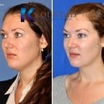 chin-liposuction-san-diego-57-copy