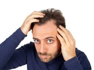 hair loss san diego treatment