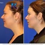 san-diego-neck-liposuction-144