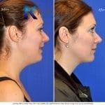 san-diego-neck-liposuction-145-copy