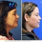 san-diego-neck-liposuction-146-copy