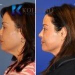 san-diego-neck-liposuction-147-copy