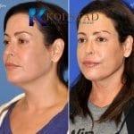 san-diego-neck-liposuction-149-copy