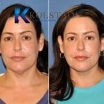 san-diego-neck-liposuction-150-copy